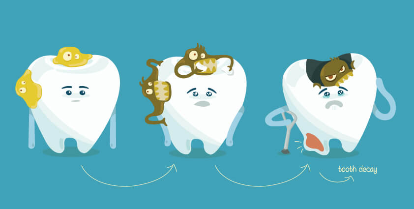 The story of tooth decay