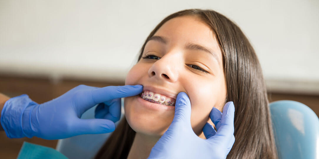 All You Need to Know about Braces for Your Children