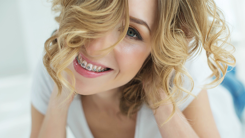 9 Reasons Why Ceramic Braces Are The Right Choice You
